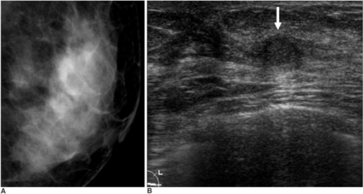An asymptomatic 52-year-old woman with benign papilloma upon core needle biopsy.A. Collimated photograph of the mediolateral oblique mammogram reveals no focal abnormality in the left subareolar area.B. Sonogram reveals a 7 mm oval mass (arrow) in the left subareolar area. This finding was thought to be concordant with the benign histology of the core biopsy. A subsequent surgical rebiopsy due to the patient's concern also revealed benign papilloma.