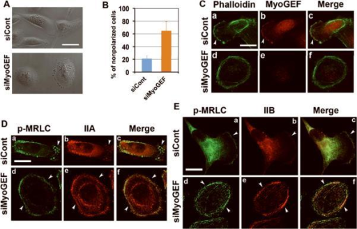 MyoGEF colocalizes with actin-myosin filaments at the cell leading edge(A) MDA-MB-231 cells were subjected to immunofluorescence with anti-MyoGEF antibody (green) and rhodaminephalloidin (red). (B) Immunoblot analysis of total cell lysates from MDA-MB-231 with anti-MyoGEF antibody. Note that a single band was recognized by MyoGEF antibody in MDA-MB-231 cell lysates. (C) Exogenously expressed GFP-MyoGEF (green) colocalizes with actin filaments (red) in transfected MDA-MB-231 cells. (D) Exogenously expressed GFP-IIA (green) colocalizes with endogenous MyoGEF (red) at the cell leading edge of transfected MDA-MB-231 cells. (E) Exogenously expressed GFP-MyoGEF (green) colocalizes with endogenous NMIIA (red) at the cell leading edge of transfected MDA-MB-231 cells. Bars, 10 μm.