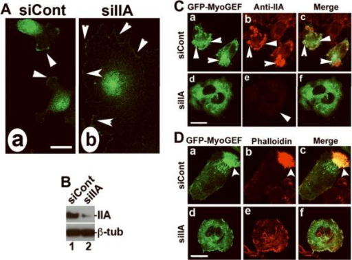 NMIIA is required for polarized localization of MyoGEF as well as the formation of MyoGEF-induced actin bundles(A) MDA-MB-231 cells treated with control siRNA (siCont; panel a) or NMIIA siRNA (siIIA; panel b) were subjected to immunofluorescence with anti-MyoGEF antibody. (B) MDA-MB-231 cells treated with siCont or siIIA were subjected to immunoblot analysis with antibodies specific for NMIIA or β-tubulin. (C-D) A plasmid encoding GFP-MyoGEF was cotransfected into HeLa cells with siCont or siIIA. The transfected cells were subjected to immunofluorescence with anti-IIA antibody (C) or phalloidin (D). Bars, 10 μm.