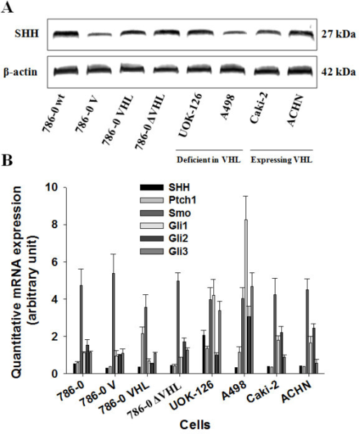 All the SHH signaling pathway components are expressed in human CRCC cells independently of VHL expression. (A) Western blot analysis of the SHH ligand in human CRCC cell lysates incubated with antibodies against human SHH ligand and corresponding β-actin. The expression of the ligand was assessed in 786-0 cells either untransfected (786-0 wt) or transfected with the vector alone (786-0 V), the full-length human VHL cDNA (786-0 VHL) or truncated inactive VHL cDNA sequence (786-0 ΔVHL), as well as in a panel of human CRCC cell lines either deficient in VHL expression (Deficient in VHL) or expressing VHL (Expressing VHL). The gels shown are representative for at least 3 independent experiments. (B) Quantitative gene expression of SHH ligand, of Ptch1 and Smo receptors, and of the Glis transcription factors (Gli1, Gli2 and Gli3) in the same panel of cells depicted in (A). Results are shown as mean ± SEM, n = 4.