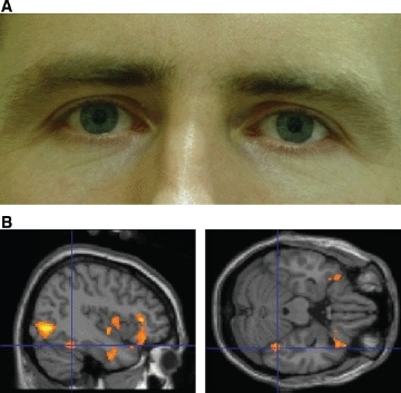 (A) Example of male face stimulus illustrating mild pupillary dilatation (image 13 of 24). (B) Right fusiform face area activation in response to the main effect of viewing faces. Plotted at p = .005 for illustration, only clusters of 50 or more voxels shown.