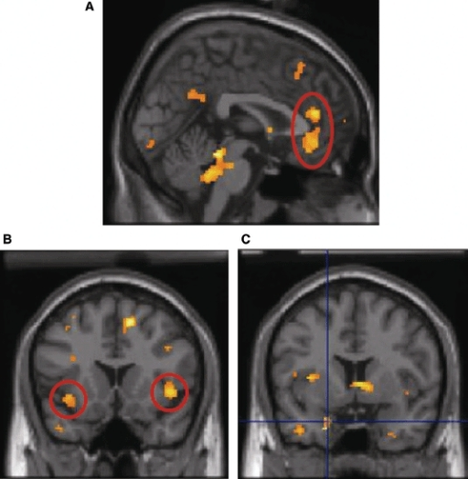 Interaction between feedback condition and variance in pupil size showing significant activation in: (A) anterior cingulated; (B) left amygdala; (C) bilateral anterior insula for negative positive feedback. Activations plotted at p =.05 for illustration, only clusters of 50 or more voxels shown.