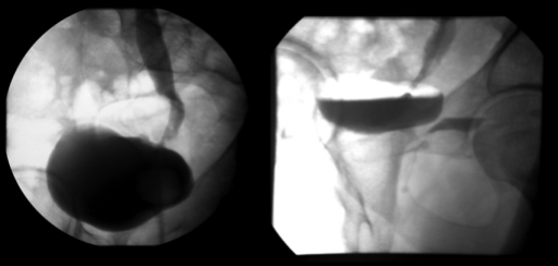 Voiding cystourethrogram obtained on postoperative day number 7 demonstrating no evidence of extravasation from the ureterovesical anastamosis with the ureteral stent in place (a) or the distal ureteral stump on the postvoid film (b).