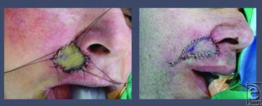 Full-thickness skin grafting (a) and V-Y advancement flap (b).