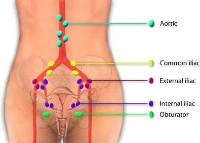 Lymph drainage of the cervix uteri is complex, bilateral, and can affect lymph nodes in several areas. In our pilot study, nine SLNs were found. These were localized in the left obturator fossa (three), right obturator fossa (two), left external iliac (one), right external iliac (one), right common iliac (one), and on the junction of the right internal iliac and obturator fossa (one).