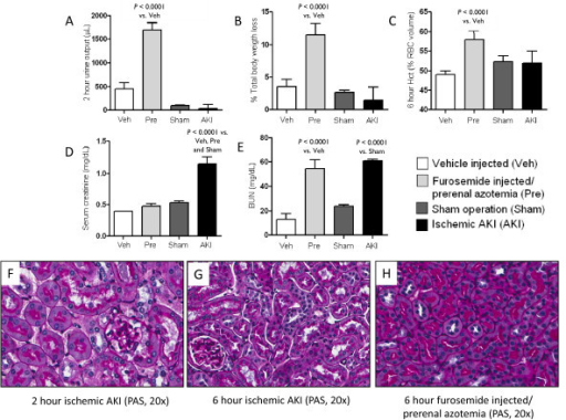 Mouse model of pre-renal azotemia and ischemic AKI  Pre | Open-i