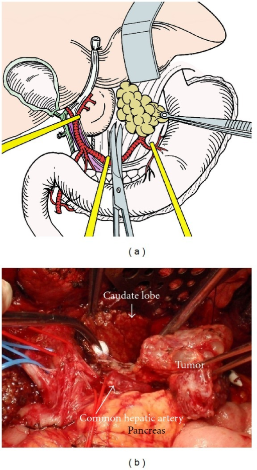 Dissection of the tumor in the superior omental recessus. By traction of tumors to the left side, the capsule of the caudate lobe is cut and the tumors with liver capsule and retroperitoneum are dissected from the caudate lobe, left crural muscle, and vena cave.