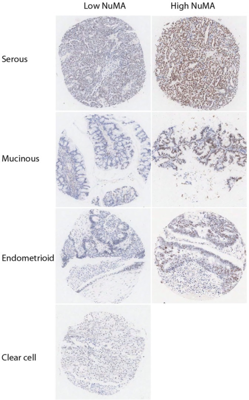 NuMA expression in different ovarian tumour subtypes.Low and high NuMA staining patterns observed in cores from serous, mucinous, endometrial and clear cell carcinomas in a large scale ovarian TMA. Magnification x10.
