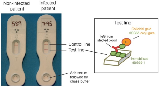 Prototype lateral flow device for detecting antibodies to rISG65-1 protein.Representative results using serum samples from a matched uninfected patient (left) and a stage 2 T. b. gambiense infected patient (right). The visual scores for these test lines were 0 and 5, respectively, and the CAMAG densitometry measurements were 24.2 and 597.4, respectively. The inset shows the principle of detection, with patient antibody to ISG65 forming a bridge between rISG56-1 immobilised on the nitrocellulose strip and the colloidal gold-coupled rISG65-1 picked up from the sample pad.