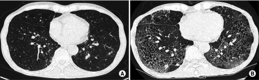 Follow-up chest computed tomography scan during chemotherapy. (A) At diagnosis of peripheral T cell lymphoma, not otherwise specified, multiple lymph node enlargement and diffuse centrilobular emphysema were observed. (B) After the first cycle of chemotherapy with cyclophosphamide, adriamycin, vincristine, and prednisolone along with etoposide, the scan shows newly-developed diffused ground glass opacities with reticulation and peripheral predominance in both lungs.