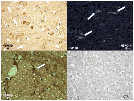 Differential immunohistochemical reaction of HSP-70: a great neuronal (A) involvement of HSP-70 expression was observed. The reaction was more intense in the cytoplasm of the neurons and included infrequent HSP-70 protein-positive inclusions in astrocytic fluorescence, well evidenced by use of the confocal microscope (B); and (C) The positive reaction was well appreciated also by using the bright field. Negative control case (CTR).