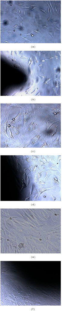 Microscopic images of cells of control group A and experimental group B at different time points (100x). After 1 day in culture, cell density in group A (a) and group B (b) was low. The cells were observed triangle-shaped, disc-shaped, and megagon-shaped. After 3 days in culture, the cells in group A (c) and group B (d) were observed to connect by cellular processes. After 5 days in culture, cells in group A (f) and group B (e) increased and completely covered the surface of the composite.