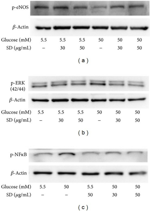 Effects of SD on HG-induced phosphorylation of eNOS, ERK, and NF-κB in HUVECs: HUVECs (2 × 105 cells/well) were pretreated with SD (30 and 50 μg/mL) for 2 h and then treated with glucose (50 mM) for 30 min to detect the phosphorylation of (a) eNOS, (b) ERK1/2, and (c) NF-κB. The β-actin was used as an internal control.