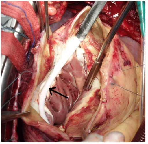 Perioperative view shows the left ventricle. After the left ventricular aneurysm was opened the transitional zone was identified. Encircling cryoablation of transitional zone between the scar and viable tissue (arrow).