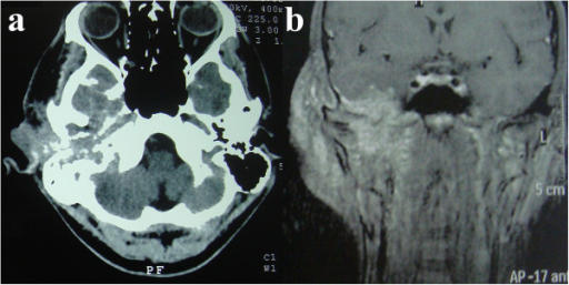 Computed tomography and magnetic resonance imaging. Detailed legend: Computed tomography axial image (a) and magnetic resonance imaging coronal image (b) of the head, performed without (a) and with (b) the administration of contrast material, showing the infiltrative lesion in the external right ear and its relation to anatomical structures.
