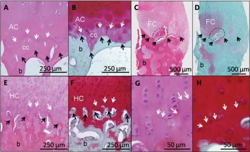 Different features of the osteochondral junction in normal and repair cartilage are revealed by hematoxylin and eosin (H & E) (A, C, E, G) and Safranin O/fast green/iron hematoxylin (SafO) (B, D, F, H). In normal human cartilage (A and B, adult hip surgical waste, femoral neck fracture), H&E clearly stains the tidemark (A, white arrows), while SafO readily discriminates cartilage from fast green–stained bone (below the black arrows, B). For heterogeneous human repair cartilage (C and D, biopsy taken 1 year postmicrofracture71,121), H&E is better for determining the cartilage-bone boundary (black arrows, C) and abnormal mineralization (dashed circle), while SafO discriminates fibrocartilage from fast green–stained fibrous repair and bone (D). In hyaline cartilage repair elicited in a sheep model (E-H, 6 months posttreatment43), the tidemark is beginning to form (white arrows, 10x magnification for E and F, 40x magnification for G and H). White arrows = tidemark; black arrows = cartilage-bone interface; AC = articular cartilage; cc = calcified cartilage; FC = fibrocartilage; HC = hyaline cartilage; b = bone.