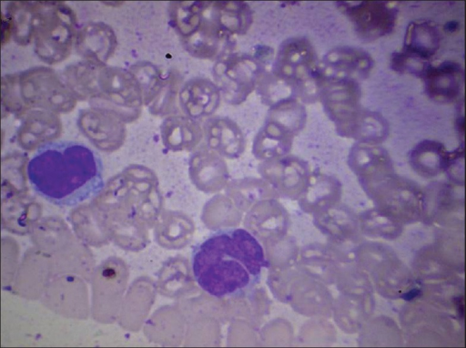 Peripheral smear of patient 2 showing atypical lymphoid cells with indented nuclei (hematoxylin and eosin stain (H and E), magnification 100×)