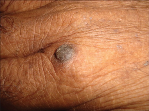 Verrucous papules in patient 3 with acute ATL