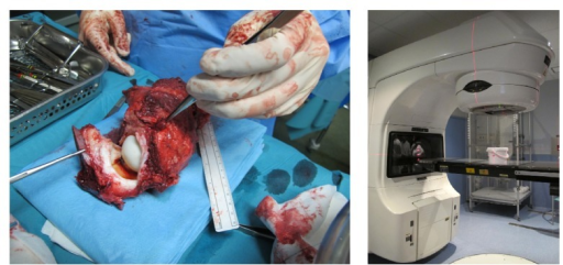 Following the Bernese periacetabular osteotomy, an en bloc extra-articular resection of the acetabulum was performed; the resected specimen was then transferred to a separate sterile trolley. A capsulectomy was made through the acetabular rim, and the articular fluid and proximal femur were sent for histological examination. The acetabulum was placed in a sterile container and sent to the radiotherapy department for extracorporeal irradiation.