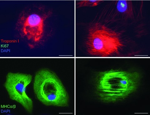 Representative immunofluorescence images showing hESC-CM stained positive for the markers cardiac specific troponin I (red) and myosin heavy chain α/β (MHC-α/β, green) from hESC-CM (left panel) in immature stage of differentiation and (right panel) in the mature stage of differentiation. Mitotic marker Ki67 shows nuclear expression in proliferating cell (green, nuclear spotted pattern). The striations characteristic of the sarcomeric structures in hESC-CM can be seen. DAPI (blue) was used for nuclear staining. Scale bar, 20 μm.