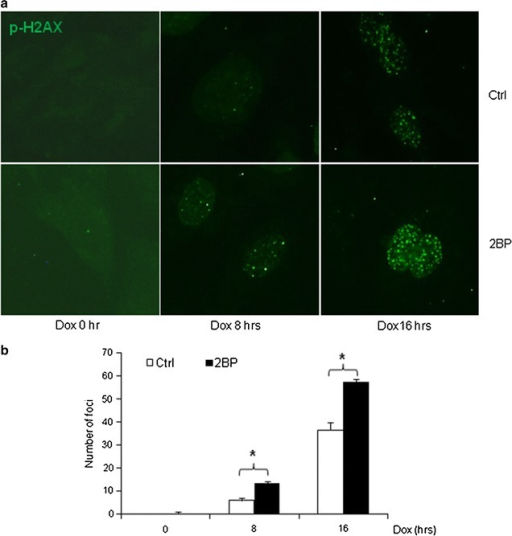 Inhibition of palmitoylation impaired assembly/disassembly of DNA damage foci. Primary MEFs grown on coverslips were pre-treated with 50 μM 2BP for 24 h and then treated with 1 μM Dox for different periods of time. The cells were then fixed and immune-stained for H2AX using Texas-red conjugated secondary antibodies (a). b Averaged number of foci per cell from multiple repeated experiments and multiple cells per experiment. Asterisk denoted significant difference (p < 0.05) between compared groups
