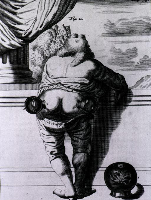 <p>A man is leaning against a low wall, his trousers are dropped below the waist and he has two glass cupping bells on his buttocks.</p>