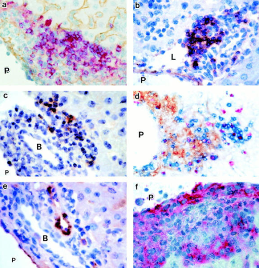 Formation of PALT. (a–f) Immunohistochemistry for B220 (a, red; type IV collagen, brown), FDC-M1 (b, brown), CR1 (c, brown), CD4 (d, blue; DEC205, brown; BrdU, red), PNAd (e, brown), and MOMA-1 (f, red) in PALT (day 7). Original magnifications: ×400. B, bile duct; P, portal vein; L, lymphatic. (g) Kinetics of BrdU+CD4+ cells in PALT and the sinusoidal granuloma (GR). Mean ± SD (n = 6). Asterisk, P < 0.05.