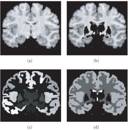 "MRI brain data. (a) Original slice with corticalstructures. (b) Original data with noncortical structures removed.(c) Manually labeled data on cortical structures. (d) Simplifiedmanually labeled data used for the ""ground truth."""