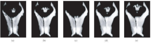 CSF segmentation. Three-dimensional rendering of theventricles extracted with: (a) IT, (b) M3DLS, (c) FC, (d) HMRF-EM,and (e) manual labeling.