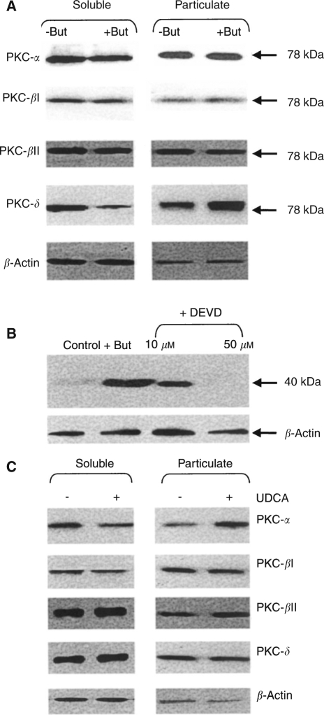 Effect of butyrate and UDCA treatment on PKC isoenzyme activation. PKC isoenzymes (α, βl, βll and δ) were measured by Western blotting in soluble and particulate fractions of (A) AA/C1 cells treated with or without 6 mM sodium butyrate for 2 h or (C) 10 μM UDCA for 24 h. (B) The 40 kDa fragment of PKC-δ was detected in whole cell lysates of AA/C1 cells treated for 18 h with 6 mM sodium butyrate in the absence or presence of the caspase 3 inhibitor Ac-DEVD-fmk. β-Actin was also measured as a loading control. The estimated molecular weights on the immunoreactive bands in (A) are shown on the right side of the figure. The blots shown are representative of three separate experiments performed.