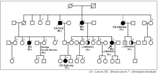 Pedigree of family F-01. Age of onset of the disease for members affected with breast cancer, other cancers and benign breast disease indicated.