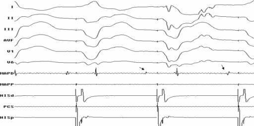 Surface ECG and intracardiac tracings during substrate mapping showing late diastolic potentials (Bold Arrows) in MapD catheter.