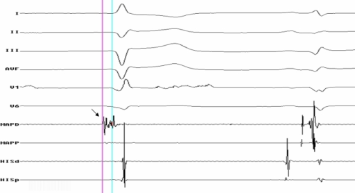 Surface ECG and intracardiac tracings during substrate mapping showing purkinje potential (Bold Arrow) preceding 'V' in first spontaneous ectopic beat, but not detectable in the beat of sinus origin.