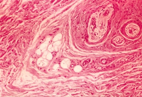 Histologic finding shows a marked fatty infiltration between the fasciculi, with fibrotic thickening of the endoneurium and perineurium (H&E, × 100).