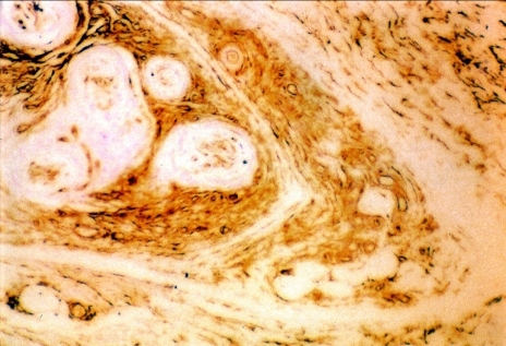 CD34 immunohistochemical stain shows a positive reaction (× 100).