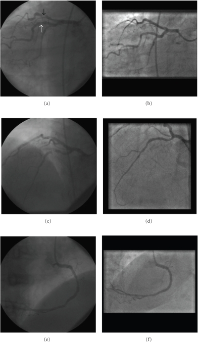 Coronary angiograms pre and post coronary intervention (left and right columns, resp.). Panels (a, b): Left anterior Oblique (LAO) caudal view showing lesion in large obtuse marginal (white arrow) and severe stenosis of LAD (black arrow), Panels (c, d): PA cranial view showing severe LAD stenosis prior to (c) and post intervention (d). Panels (e, f): Left-sided right coronary. artery in Right anterior oblique (RAO) view.