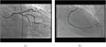 "Double-inversion technique. Panel (a): LAO caudal view (as in Figure 2(a)) with additional horizontal inversion demonstrating apparent ""normal"" RAO caudal angiographic appearances. Note, also, engagement of the EBU catheter. Panel (b): RAO view of the left-sided right coronary artery with additional horizontal inversion mimicking a conventional LAO view."