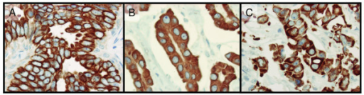 Sub-cellular location of the BTG2 protein in this study. Brown colour represents BTG2 staining. BTG2 protein immunohistochemistry staining using tissue microarrays show exclusive cell membrane specific expression (A), exclusive cytoplasm expression (B), and both cell membrane and cytoplasm expression of BTG2 in the same sample (C).
