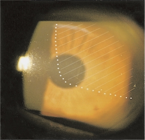 Diffuse stromal edema (white shaded area) involving the pupil from the 12 to 4 o'clock position.