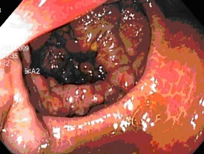 Varices noted in the cecum.