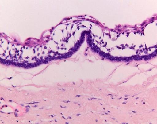 Figure 3:Histopathology of ameloblastoma of the jaws; some ...