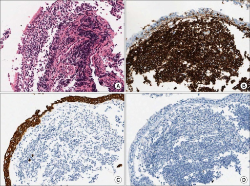 The bronchoscopic biopsy specimens of the left main bronchial lesions. (A) The bronchial mucosa shows diffuse proliferation of atypical lymphoid cells beneath the mucosal epithelium. The neoplastic lymphoid cells show diffuse strong positive for (B) CD20, but negative for (C) pan cytokeratin and (D) CD10 (A~D, ×200).