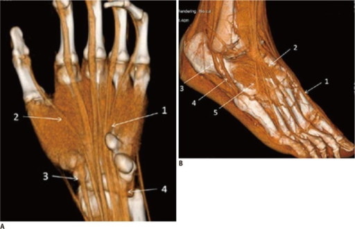 normal tendons volume rendering images a normal hand open i