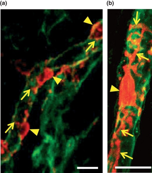 Identification of pericytes in the renal medulla. Kidne | Open-i