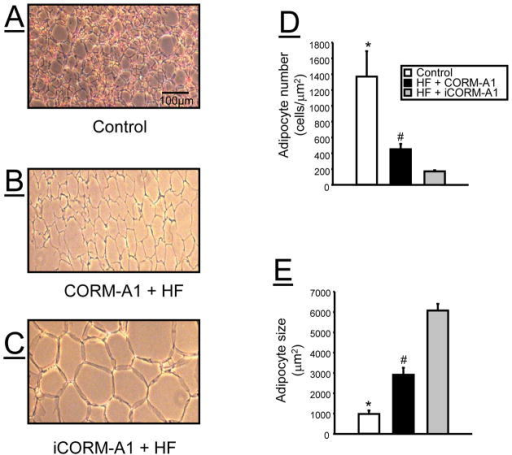 Representative hematoxylin and eosin (H &E) staining of epidydmal fat tissues from A) control, B) high fat (HF) + CORM-A1, and C) high fat (HF) + iCORM-A1 treated mice. D) adipocyte number from the different treatment groups (n=3 per group). E) adipocyte size of the different treatment groups (n=3 per group). *= significant from HF treated mice, P<0.05. #= significant from iCORM-A1 treated mice, P<0.05.