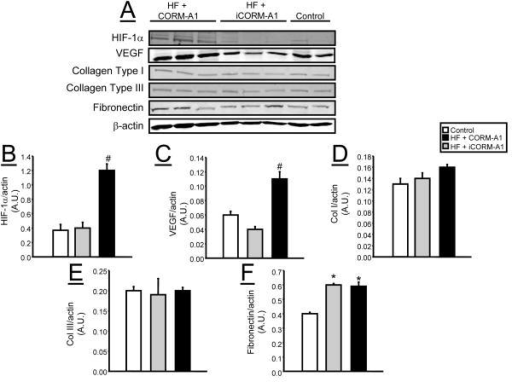 Representative Western blots from epidydmal fat tissues from control (n=4), high fat (HF) + CORM-A1 (n=6), and high fat (HF) + iCORM-A1 treated mice (n=6). A) Representative blots. B) Levels of HIF-1α. C) Levels of VEGF. D) Levels of collagen type I. E) Levels of collagen type III. F) Levels of fibronectin. *= significant from control mice, P<0.05. #= significant from HF + iCORM-A1 treated and control mice, P<0.05.