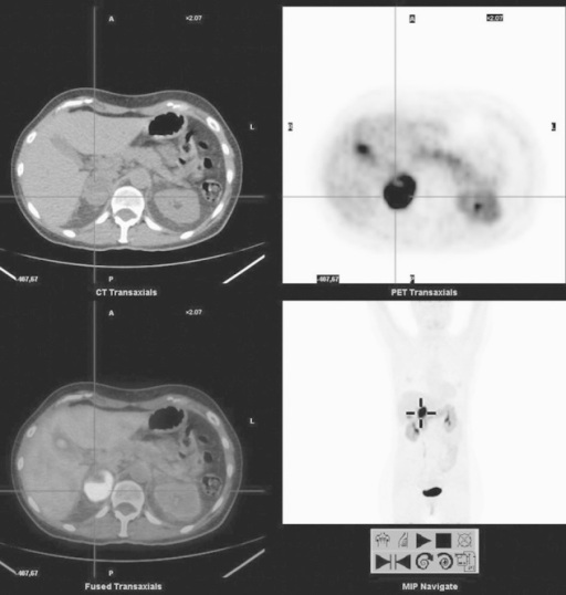 Right adrenal lesion. From the upper left, clockwise: computed tomography (CT), PET, MIP, and fused PET/CT images of l-6-[18F]fluoro-3,4-dihydroxyphenylalanine (18F-DOPA) PET/CT of a 51-year-old woman presenting with very high urinary normetanephrin levels. 123I-MIBG scintigraphy revealed only a mild to moderate uptake of the tracer in the right adrenal. Instead, 18F-DOPA PET/CT shows a very intense uptake in the right adrenal, consistent with pheochromocytoma. Note the concomitant uptake in the body–tail of the pancreas, and the intense uptake in the gallbladder. Images with no carbidopa premedication.