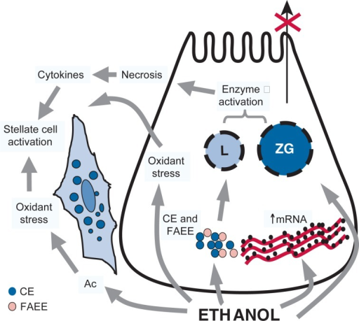 The Figure depicts an overall hypothesis for the pathogenesis of alcoholic pancreatitis. It is postulated that ethanol, its metabolites, and oxidant stress exert a number of toxic effects on pancreatic acinar cells, which predispose the gland to autodigestive injury. These include the following:Destabilization of lysosomes (L) and zymogen granules (ZG). This destabilization is mediated by oxidant stress; cholesteryl esters (CEs), which are known to accumulate in the pancreas during ethanol consumption; and fatty acid ethyl esters (FAEEs), which are nonoxidative metabolites of alcohol.Increased digestive and lysosomal enzyme content attributed to increased synthesis (increased mRNA) and impaired secretion.These changes sensitize the cell such that in the presence of an appropriate trigger/co-factor overt injury is initiated (alcoholic acute pancreatitis). Cytokines released during alcohol-induced necroinflammation activate pancreatic stellate cells (PSCs). In addition, PSCs are activated directly by ethanol, most likely via its metabolism to acetaldehyde (Ac) and the subsequent generation of oxidant stress. Activated PSCs then synthesize excess amounts of extracellular matrix proteins leading to pancreatic fibrosis.