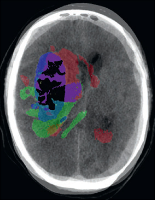 Overlay of cases 1–3 on a single image, with color representations of the overlapping areas of hemorrhage.