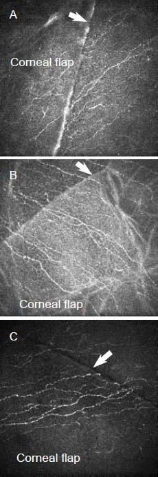 Regenerated corneal subbasal nerve fibers in the corneal flap at 1 month (A), 2 months (B) and 3 months (C) after laser in situ keratomileusis (× 800). Arrows: incision.(A) Branchless, tortuous and thin regenerated fibers derived from outside the incision extended towards the center of the flap.(B) New fibers appeared longer and stronger than that at 1 month.(C) New fibers appeared stronger with more branches than that at 2 months.